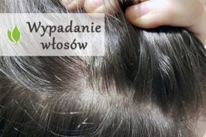 Naturalne sposoby na wypadanie włosów