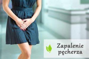 Domowe sposoby na zapalenie pęcherza moczowego