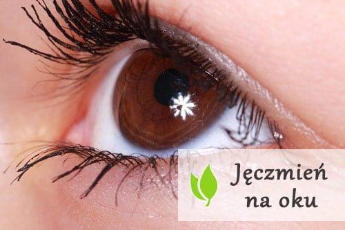 Jęczmień na oku - przyczyny, objawy, leczenie