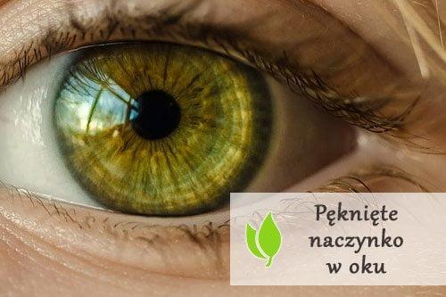 Pęknięte naczynko w oku - przyczyny i leczenie
