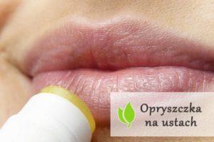 Opryszczka na ustach - przyczyny i leczenie