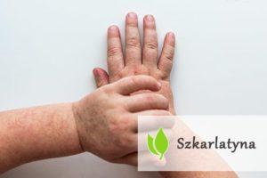 Szkarlatyna - przyczyny, objawy, leczenie