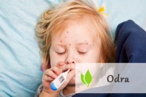 Odra - choroba zakaźna wieku dziecięcego