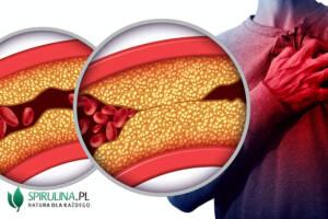 Miażdżyca tętnic wieńcowych