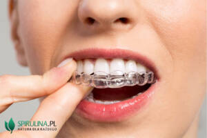 Czy wybielanie zębów jest szkodliwe?