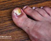Jak pozbyć się wrastającego paznokcia?