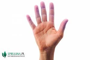 Sinienie palców u rąk