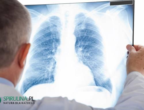 Bezobjawowe zapalenie płuc