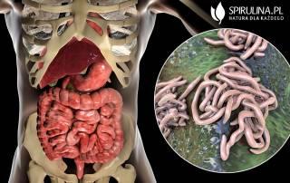 Robaczyca. Objawy i leczenie choroby pasożytniczej