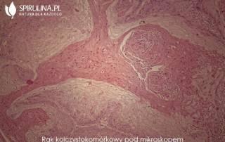 Choroba Bowena - rak kolczystokomórkowy pod mikroskopem