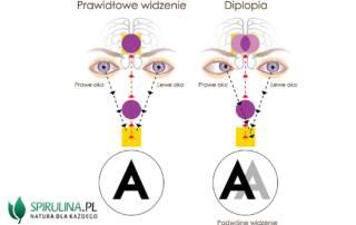 Podwójne widzenie (diplopia)